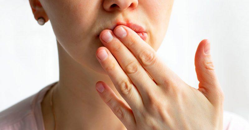 كم يستغرق ظهور أعراض الهربس؟