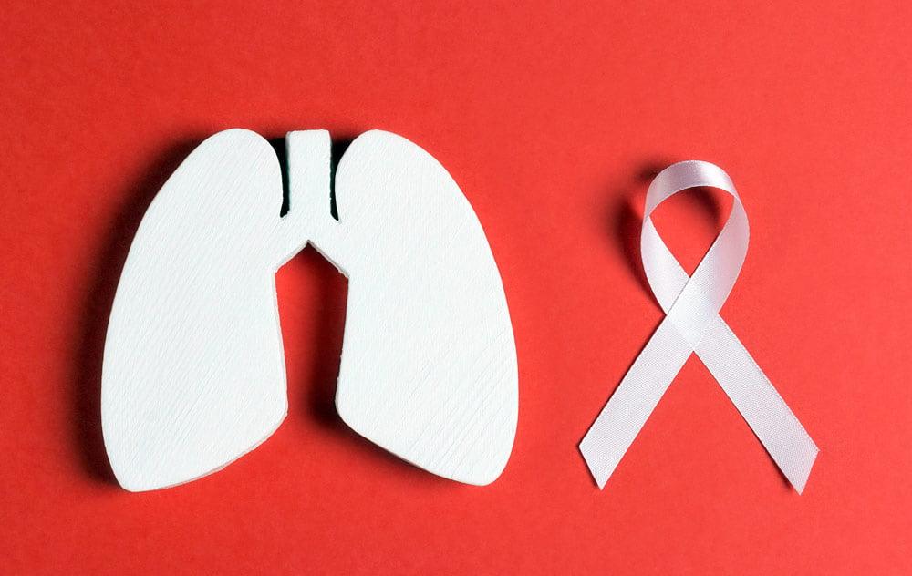 ماهو سرطان الرئة وهل هو حصرًا على المدخنين؟