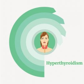 treatment for Hyperthyroidism