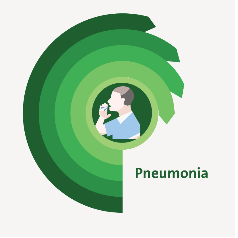 treatment for Pneumonia