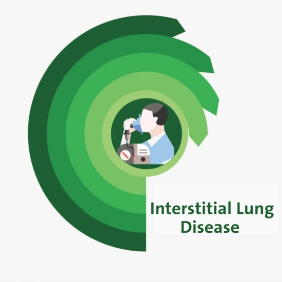 Interstitial Lung Disease and Cystic Fibrosis -CF