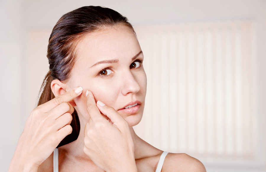 Causes for Acne Vulgaris and Possible Symptoms