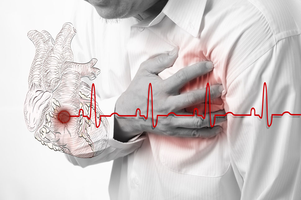 Causes for Heart Failure and Possible Symptoms