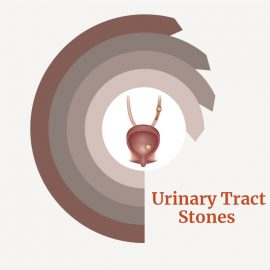 Treatment for Urinary Tract Stones