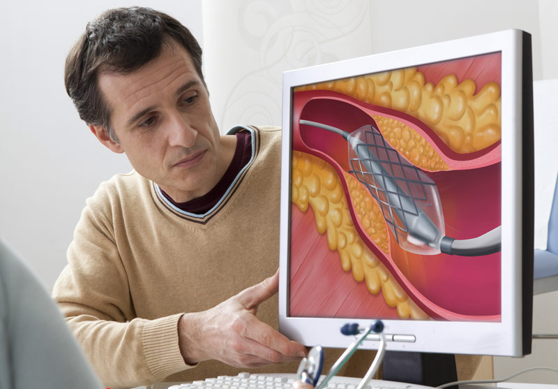Causes for Hyperlipidemia and Possible Symptoms