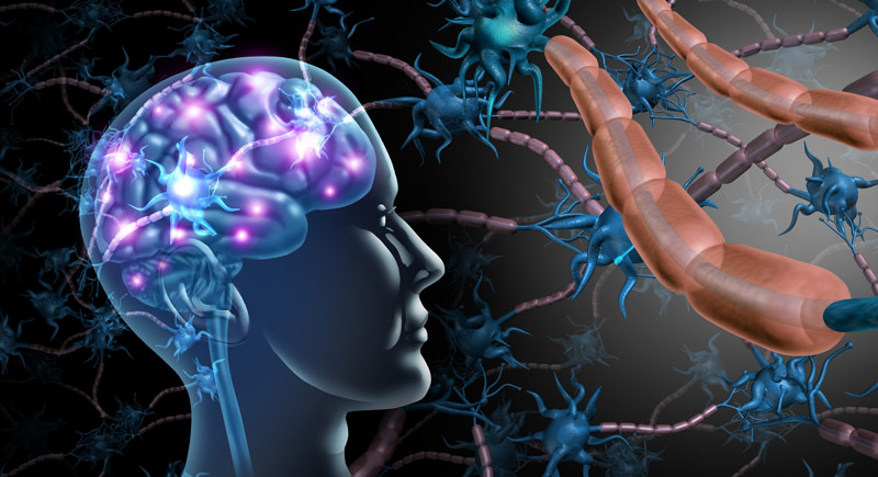 Multiple Sclerosis Facts You Should Know