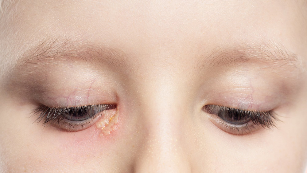 Eye Herpes: All You Need to Know