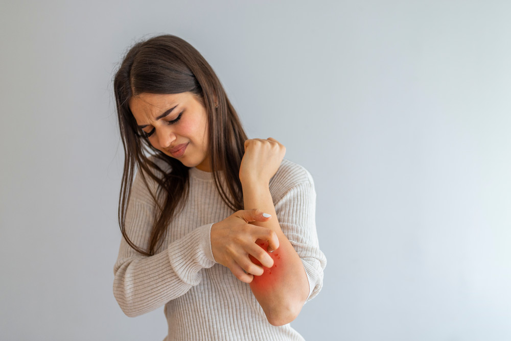 Itching in Multiple Sclerosis