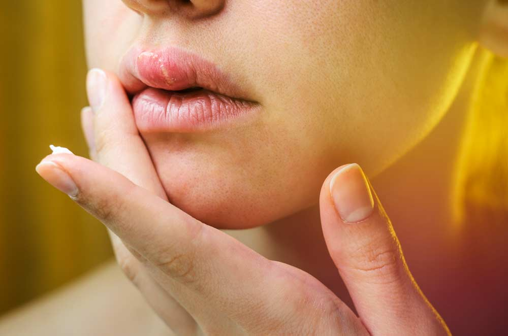 Stages of Oral Herpes