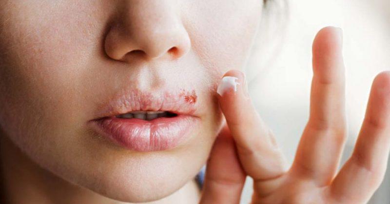 what is herpes simplex virus
